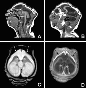 microcefalia